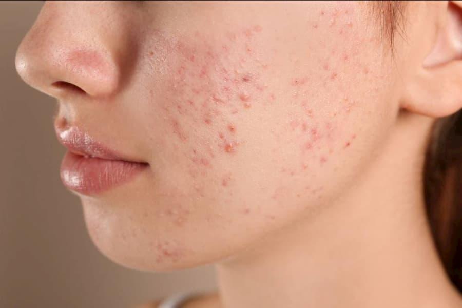cuales son los tipos de acne