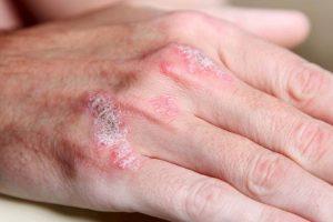 que es la psoriasis tipos y tratamientos y remedios contra la escamacion de la piel