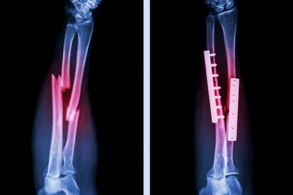 que es un traumatologo ortopedista ortopedico